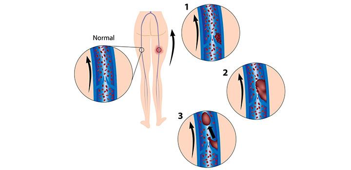 Lungenembolie Symptome Erfahrungsberichte