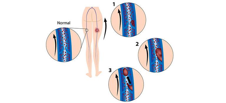 Bild 89653561 copyright Alila-Medical-Images, 2013 Mit Genehmigung von Shutterstock.com