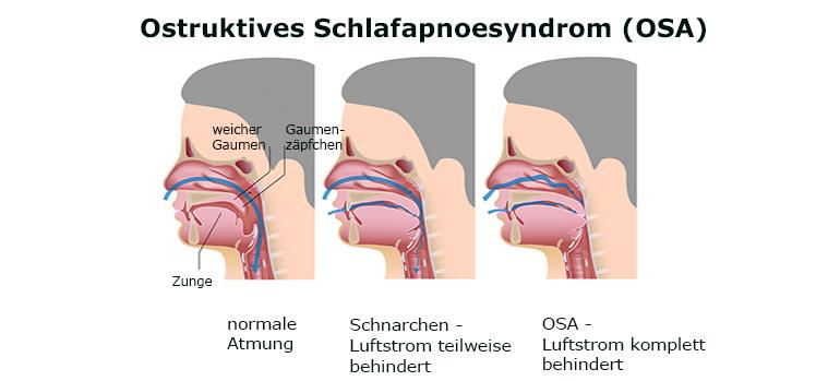 Bild 119606590 Copyright Alila-Medical-Images, 2013 Mit Genehmigung von Shutterstock.com