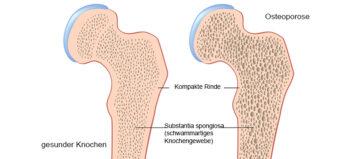 Osteoporose bei Querschnittlähmung