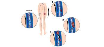 Thrombose: Entstehung, Risikofaktoren, Prophylaxe