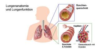Atemhilfs- und Überlebenstechniken bei Querschnittlähmung mit Atemlähmung