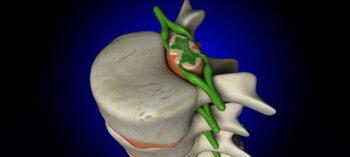 Chronische Entzündungen und Querschnittlähmung