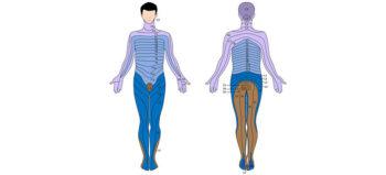 Formen der Querschnittlähmung