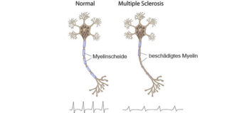 Multiple Sklerose und Querschnittlähmung