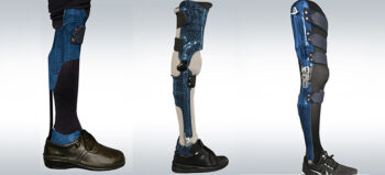 Die Gehfunktion erhalten: Orthesenversorgung bei Querschnittlähmung