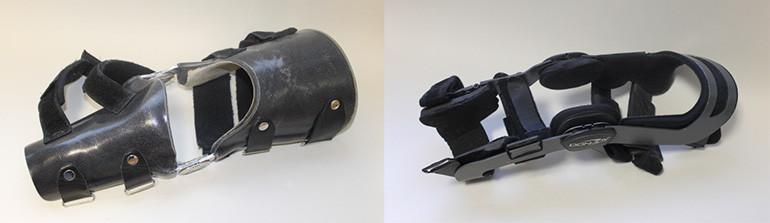 """Angepasste Orthese (links) und ein Modell """"von der Stange""""."""