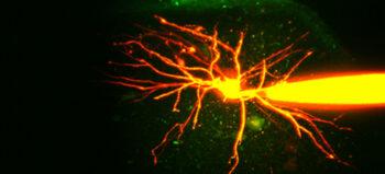 Zwei potenzielle Therapieansätze bei Spastik im Fokus der Forschung