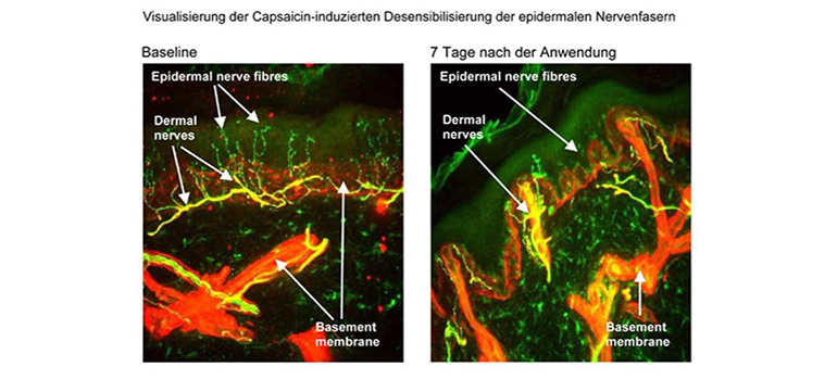 Behandlung neuropathischer Schmerzen mit dem Wirkstoff Capsaicin