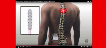 Rückenmarkstimulator ermöglicht Querschnittgelähmten Beinbewegung