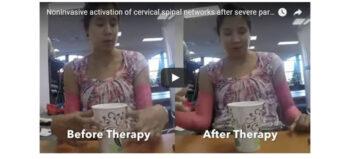 Nicht-invasive Methode zu Verbesserung der Handfunktion bei chronischer Tetraplegie