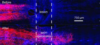 Regeneration von Nervenfasern bei Rückenmarksverletzungen