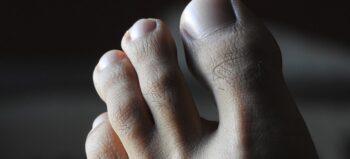 Fünf für die Füße: Fakten und Tipps, die Menschen mit Querschnittlähmung kennen sollten