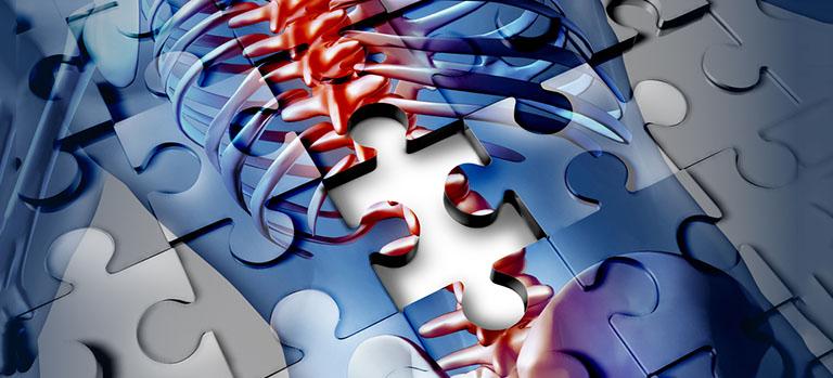 Querschnittlähmung: Was erwartet der Patient von der Forschung?