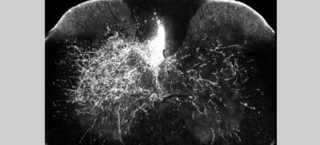 Medikament gegen Nervenschmerzen kann Regeneration neuronaler Schaltkreise fördern